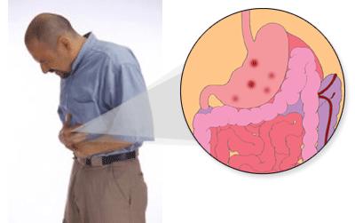Cara Menggemukan Badan Bagi Penderita Maag Yang Paling Ampuh